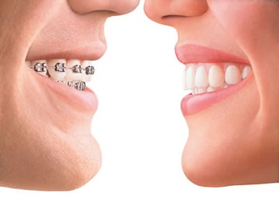 Advantages of Dental Orthodontics