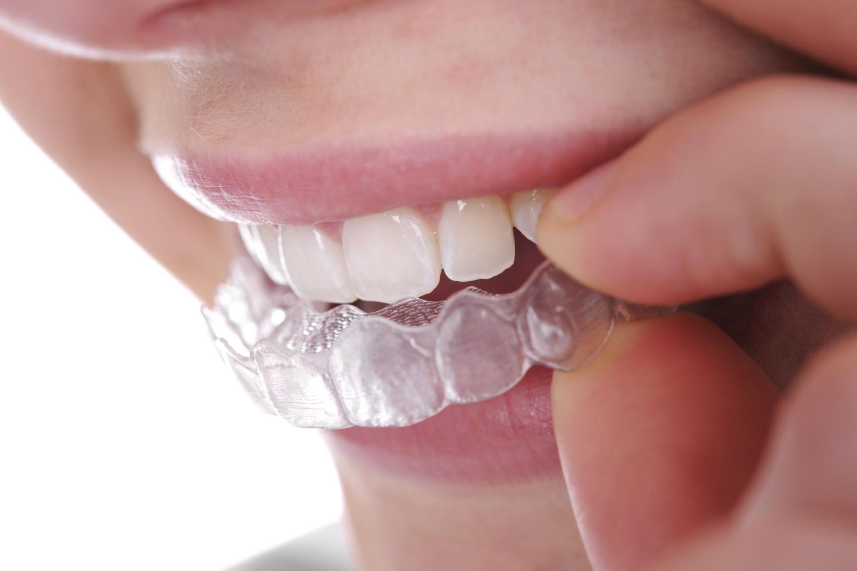 Manchester Orthodontic Centre - Invisalign Treatment